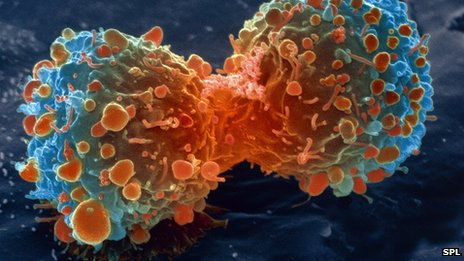 lung_cancer_cell_division,_sem-spl
